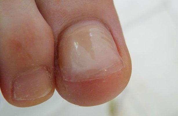 Nagelreparatie gel